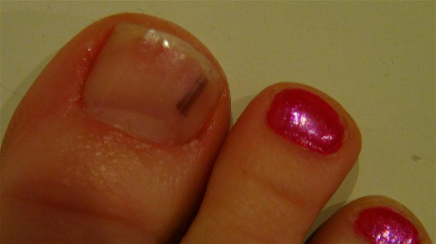 how to tell if nail fungus is getting better